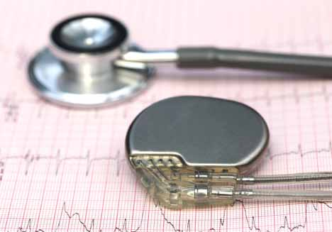 If your pacemaker gets recalled, it's natural to be nervous. But don't be scared, use this guide to understand the process.