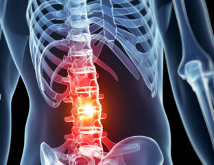 Spinal cord injuries are devastating to any human, but exactly how unfortunate can they be? Here's how a spinal cord injury affects humans.