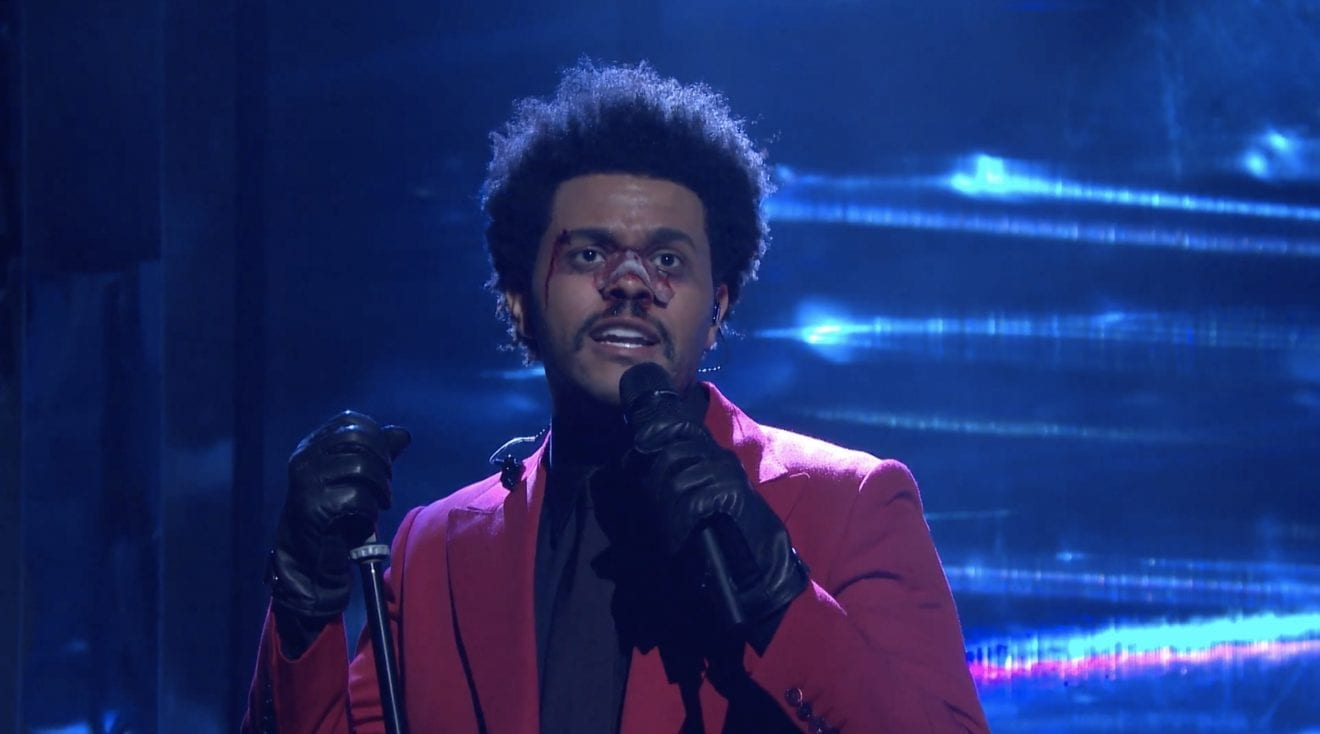 It feels like every time you look at The Weeknd and his bandaged face, it's blinding like lights. What happened to the singer to cause such a mess?