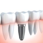 Dental implants can be incredibly helpful for those with teeth issues. Find out why dentist implants are so popular here.