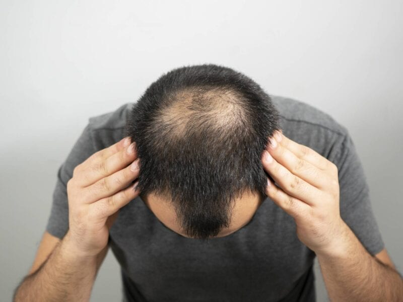 Sometimes, hair loss is a fact of life. Fortunately, there are ways to prevent or slow down balding. Check out our tips here!