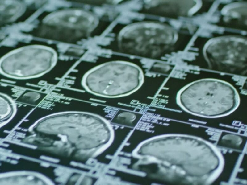 The first treatment for Alzheimer's disease since 2003 was just approved by the FDA. Discover whether it can lead to a cure and why it's still debated here.