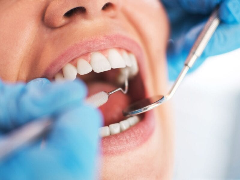 Having a regular dental checkup is crucial to maintaining a pearly white smile. Here are some reasons why you should make an appointment now.