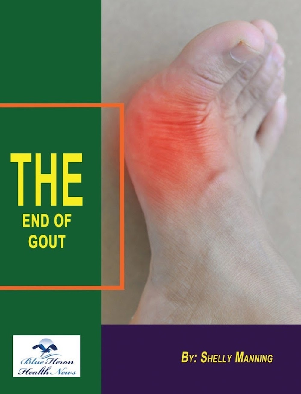 Before starting on the journey to know about The End of Gout, let us first understand what Gout is. Here's everything you need to know.