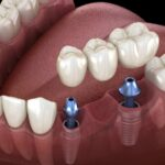 Suffering from tooth loss? Here are the top four reasons why you should get a dental implant.
